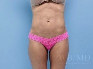 Patient 5a After Liposuction