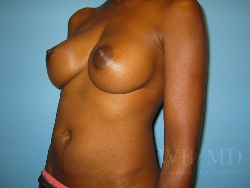 Patient 3b After Breast Augmentation