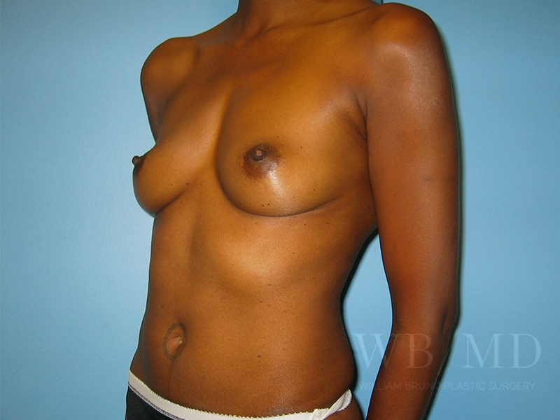 Patient 3b Before Breast Augmentation