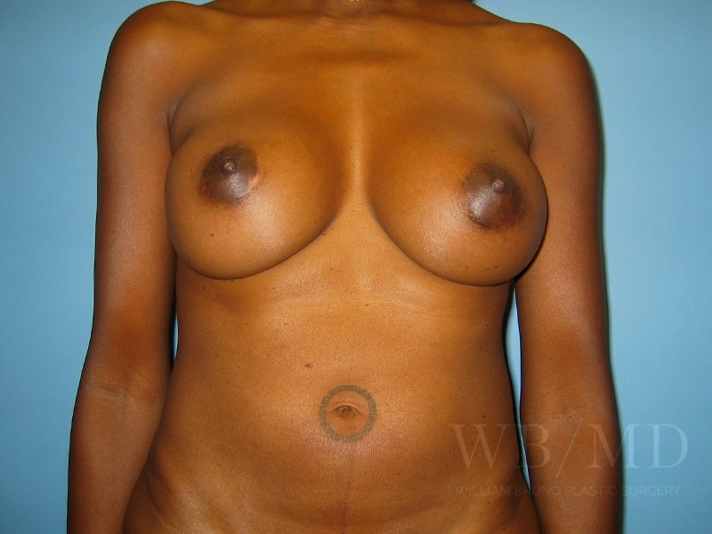 Patient 3a After Breast Augmentation
