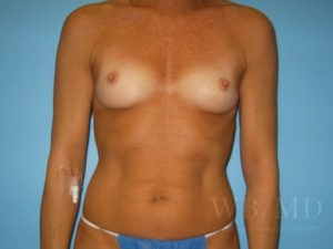 Patient 10a Before Breast Augmentation