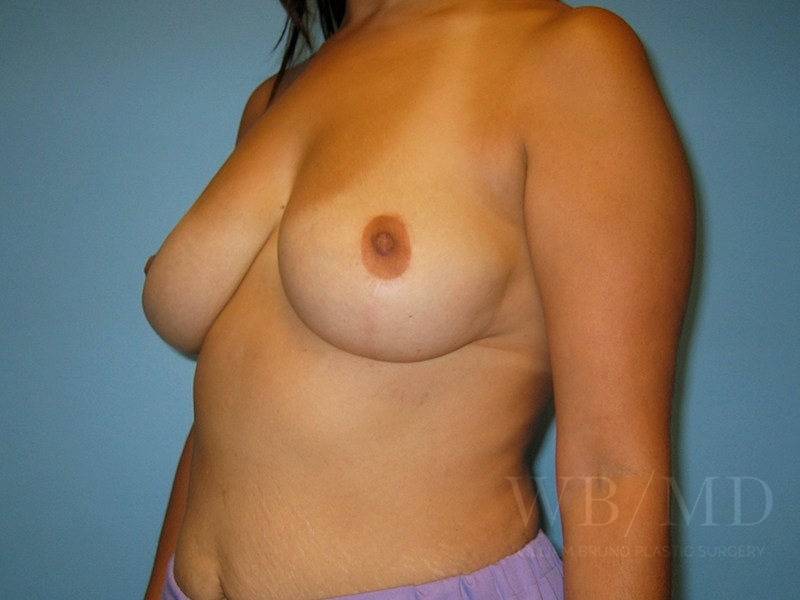 Patient 1b After Breast Lift