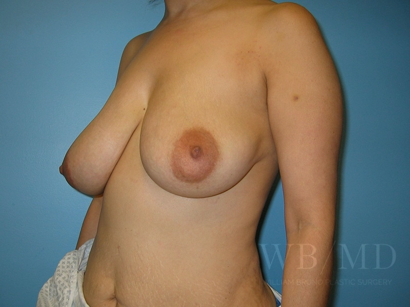 Patient 1b Before Breast Lift