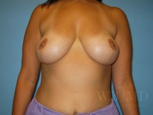 Patient 1a After Breast Lift