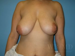 Patient 1a Before Breast Lift