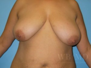 Patient 2a Before Breast Lift