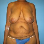 Patient 3a Before Breast Lift