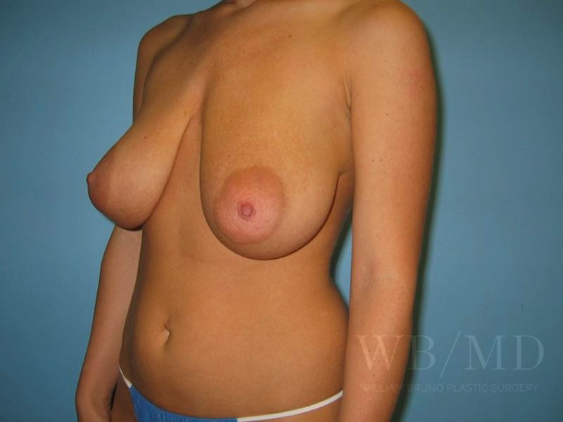 Patient 3b Before Breast Reduction