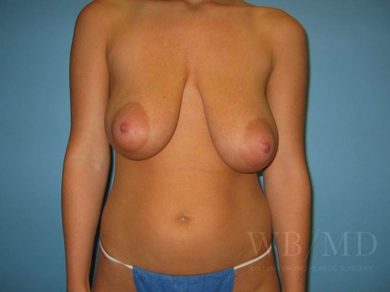 Patient 3a Before Breast Reduction