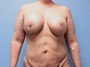 Patient 3a Before Breast Revision