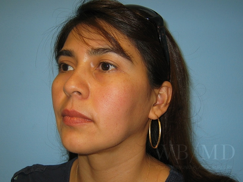 Patient 1a After Chin Liposuction