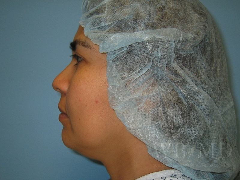 Patient 1b Before Chin Liposuction