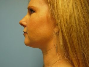 Patient 2a After Chin Liposuction