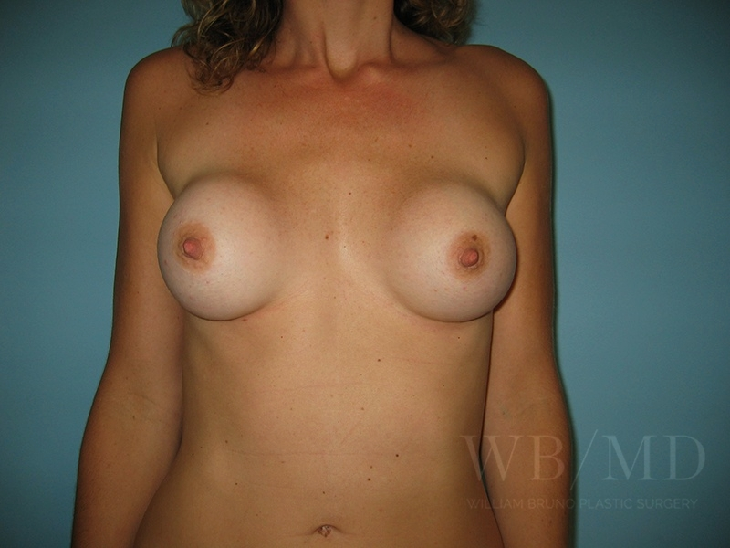 Patient 1a Before Breast Revision