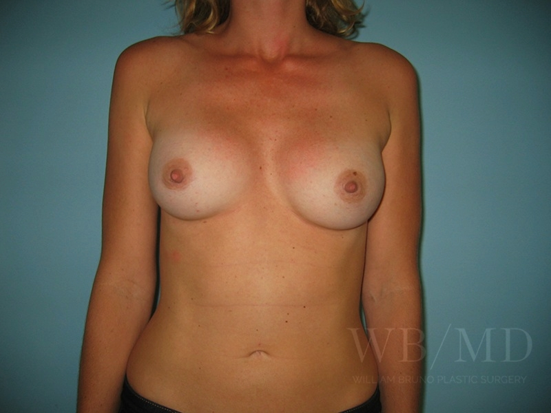 Patient 1a After Breast Revision