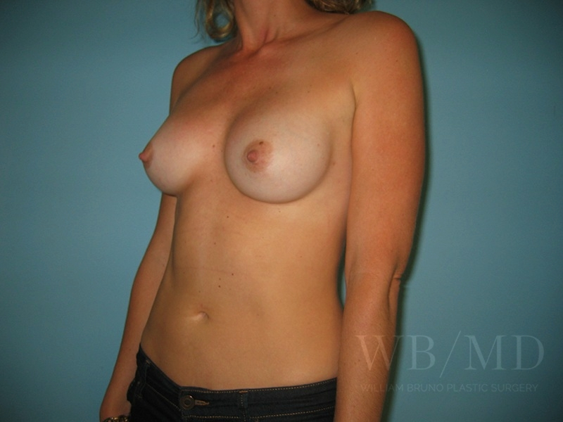 Patient 1b After Breast Revision