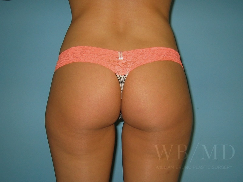 Patient 2b After Liposuction