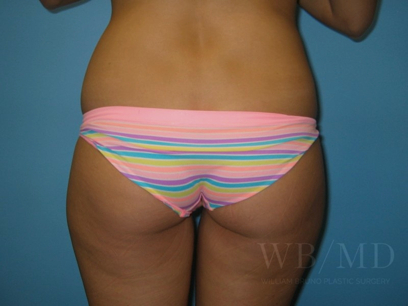 Patient 2b Before Liposuction