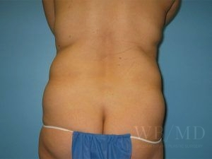 Patient 4 Before Liposuction