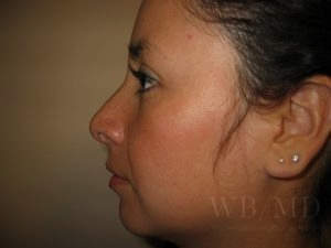 Patient 1a After Rhinoplasty