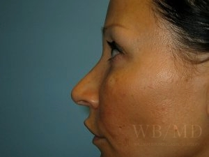 Patient 2a After Rhinoplasty