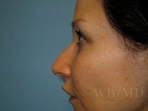 Patient 2a Before Rhinoplasty