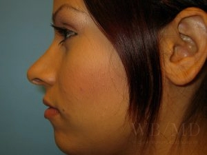 Patient 3a After Rhinoplasty
