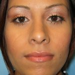 Patient 3c After Rhinoplasty