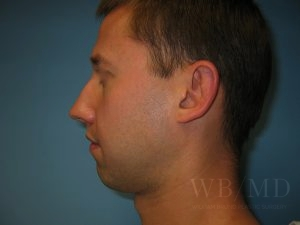 Patient 1 Before Chin Implant