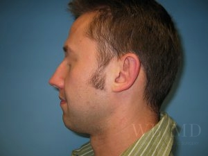 Patient 1 After Chin Implant