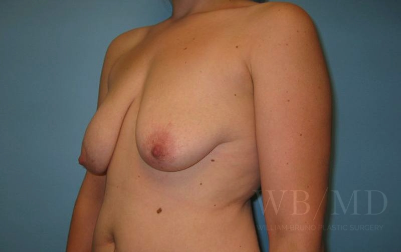 Patient 5b Before Breast Lift with Augmentation