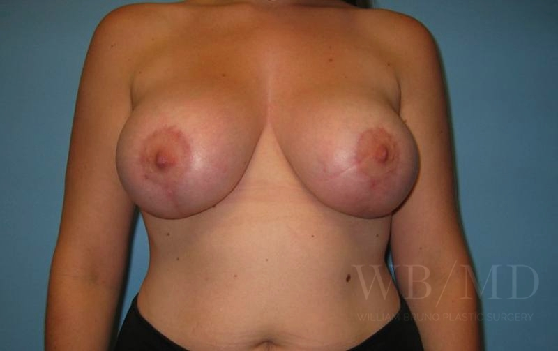 Patient 5a After Breast Lift with Augmentation