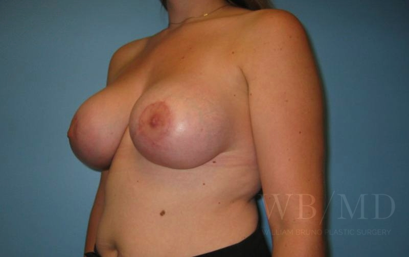 Patient 5b After Breast Lift with Augmentation