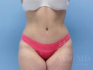 Patient 10a After Tummy Tuck