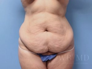Patient 10a Before Tummy Tuck