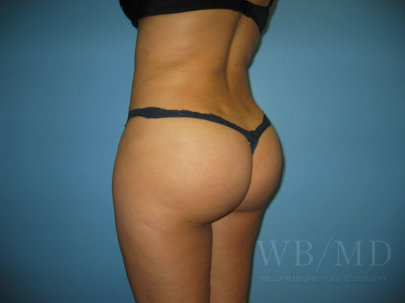 Patient 1a After Brazilian Butt Lift