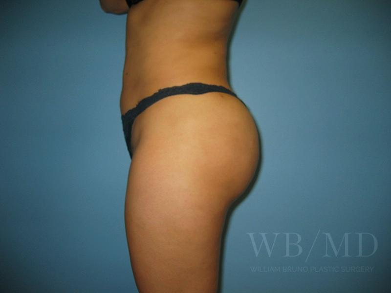 Patient 1b After Brazilian Butt Lift