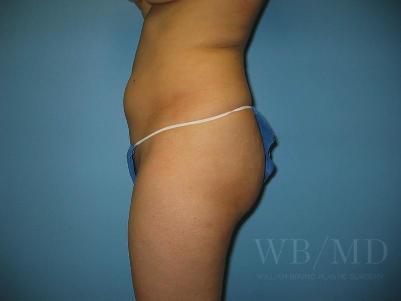 Patient 1b Before Brazilian Butt Lift