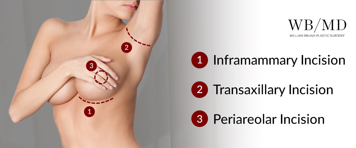 Graphic displaying the locations of inframammary, transaxillary, and periareolar incisions.
