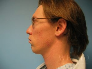 Patient 2a Before Chin Implant