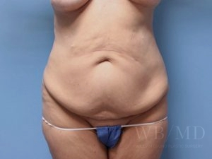 Patient 9a Before Tummy Tuck