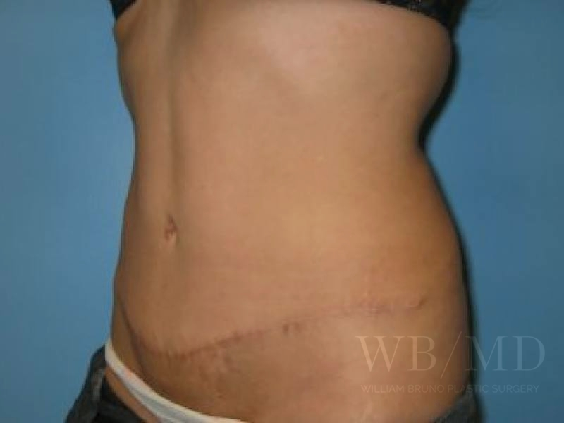 Patient 1b After Tummy Tuck