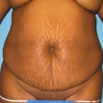 Patient 5a Before Tummy Tuck
