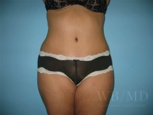 Patient 6a After Tummy Tuck