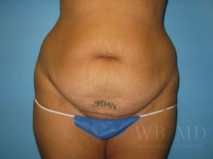 Patient 6a Before Tummy Tuck