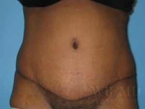 Patient 7a After Tummy Tuck