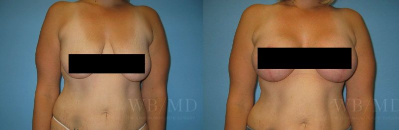 williambruno_plasticsurgery_beverlyhills_censoredphotos__0003_breastaugmentationwithlift