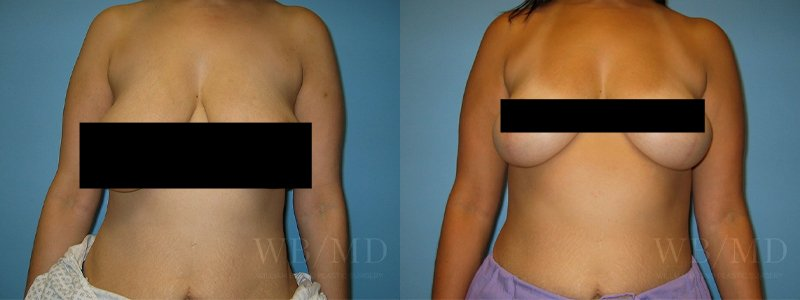 williambruno_plasticsurgery_beverlyhills_censoredphotos__0004_breastlift