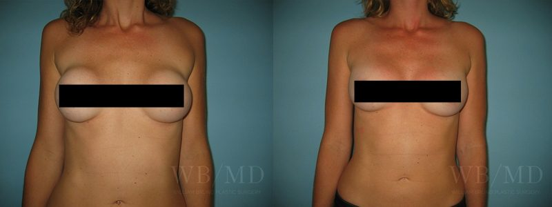 williambruno_plasticsurgery_beverlyhills_censoredphotos__0005_breastrevision