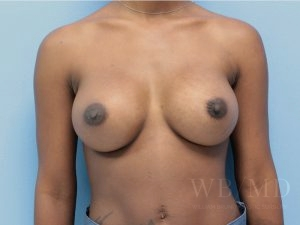 Patient 56a After Breast Augmentation